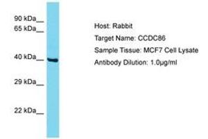 Image no. 1 for anti-Coiled-Coil Domain Containing 86 (CCDC86) (AA 101-150) antibody (ABIN6750553)