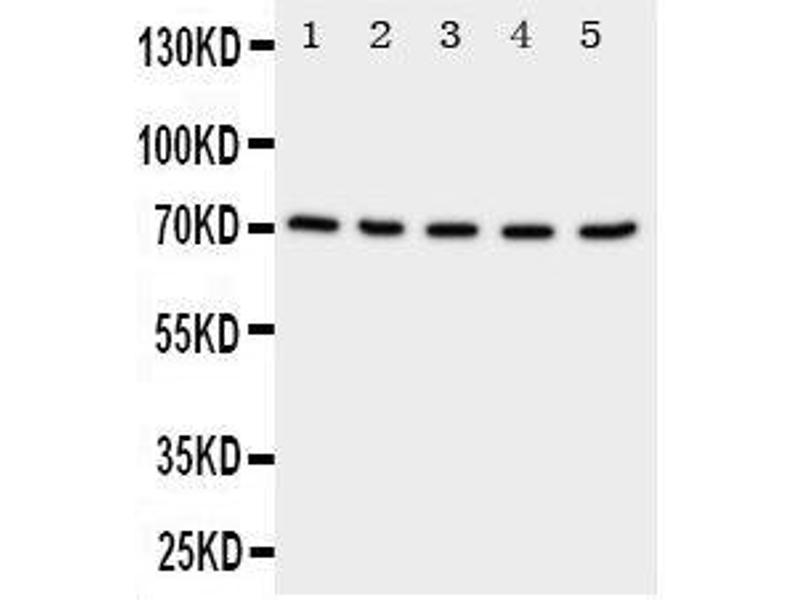 Western Blotting (WB) image for anti-Neuregulin 1 (NRG1) (AA 617-636), (C-Term) antibody (ABIN3044035)