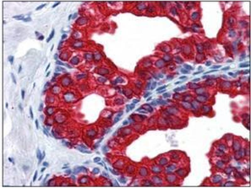 Immunohistochemistry (Paraffin-embedded Sections) (IHC (p)) image for anti-SERPINE1 antibody (serpin Peptidase Inhibitor, Clade E (Nexin, Plasminogen Activator Inhibitor Type 1), Member 1) (Internal Region) (ABIN615419)
