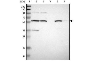 Image no. 3 for anti-Membrane Bound O-Acyltransferase Domain Containing 2 (MBOAT2) antibody (ABIN4332965)