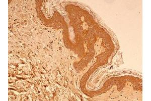Immunohistochemistry (Paraffin-embedded Sections) (IHC (p)) image for anti-Tubulin, beta (TUBB) (AA 1-100), (N-Term) antibody (ABIN269948)