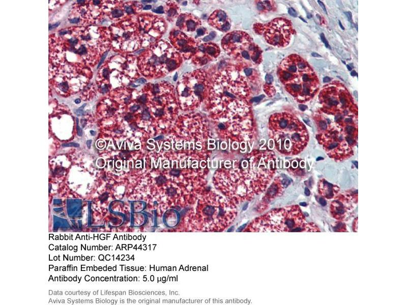 Immunohistochemistry (IHC) image for anti-HGF antibody (Hepatocyte Growth Factor (Hepapoietin A, Scatter Factor)) (N-Term) (ABIN2781816)