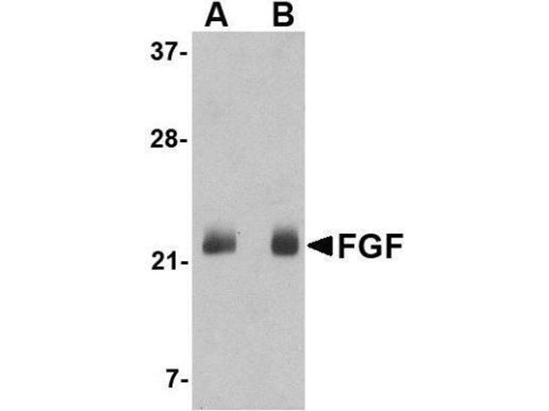 Western Blotting (WB) image for anti-FGF4 antibody (Fibroblast Growth Factor 4) (C-Term) (ABIN4311607)