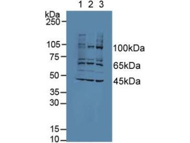 Western Blotting (WB) image for anti-Apoptosis-Associated tyrosine Kinase (AATK) (AA 1216-1374) antibody (ABIN2117008)