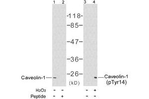 image for anti-Caveolin-1 antibody (Caveolin 1, Caveolae Protein, 22kDa) (pTyr14) (ABIN196779)