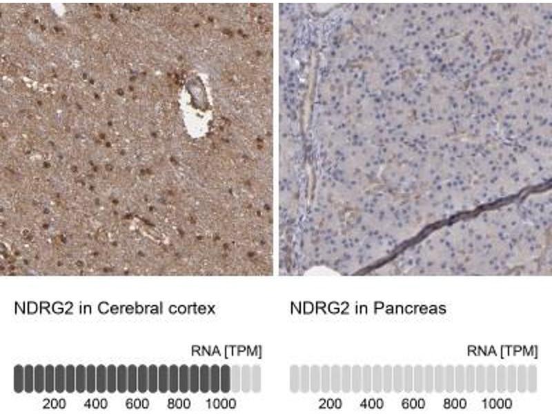 Image no. 4 for anti-NDRG Family Member 2 (NDRG2) antibody (ABIN4338340)