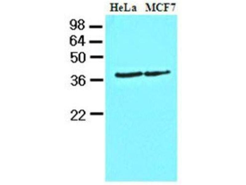 Western Blotting (WB) image for anti-CSNK1A1 antibody (Casein Kinase 1, alpha 1) (AA 1-337) (ABIN449993)