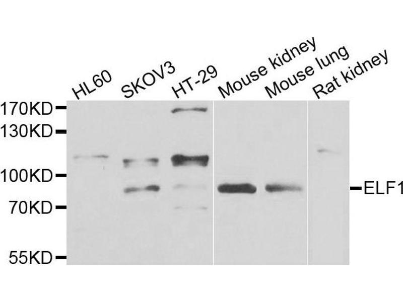 Image no. 1 for anti-E74-Like Factor 1 (Ets Domain Transcription Factor) (ELF1) antibody (ABIN2562397)