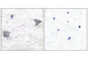 Immunohistochemistry (IHC) image for anti-PDGFRA antibody (Platelet-Derived Growth Factor Receptor, alpha Polypeptide) (C-Term) (ABIN1848738)