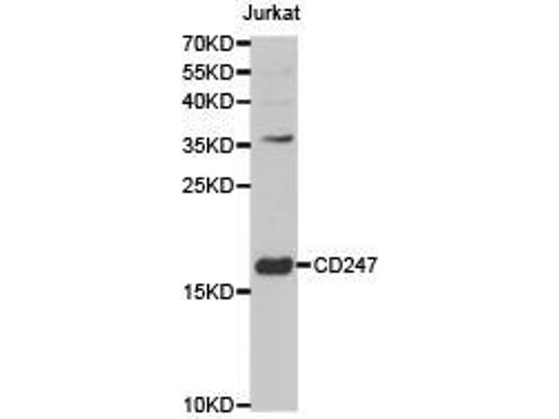 Western Blotting (WB) image for anti-CD247 Molecule (CD247) antibody (ABIN1871602)