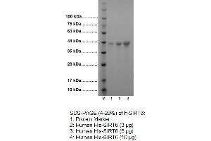 Image no. 2 for Sirtuin 6 (SIRT6) (Active) protein (His tag) (ABIN2506869)
