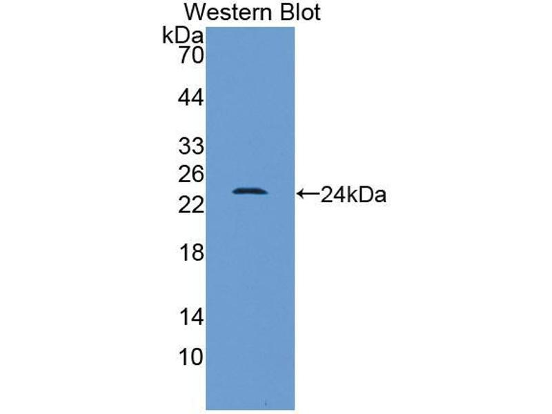 Western Blotting (WB) image for anti-High-Mobility Group Box 1 (HMGB1) (AA 1-215) antibody (ABIN2932930)