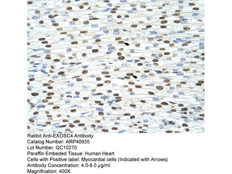 Immunohistochemistry (IHC) image for anti-Exosome Component 4 (EXOSC4) (N-Term) antibody (ABIN184050)