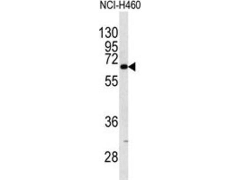Image no. 2 for anti-Keratin 9 (KRT9) antibody (ABIN3003129)