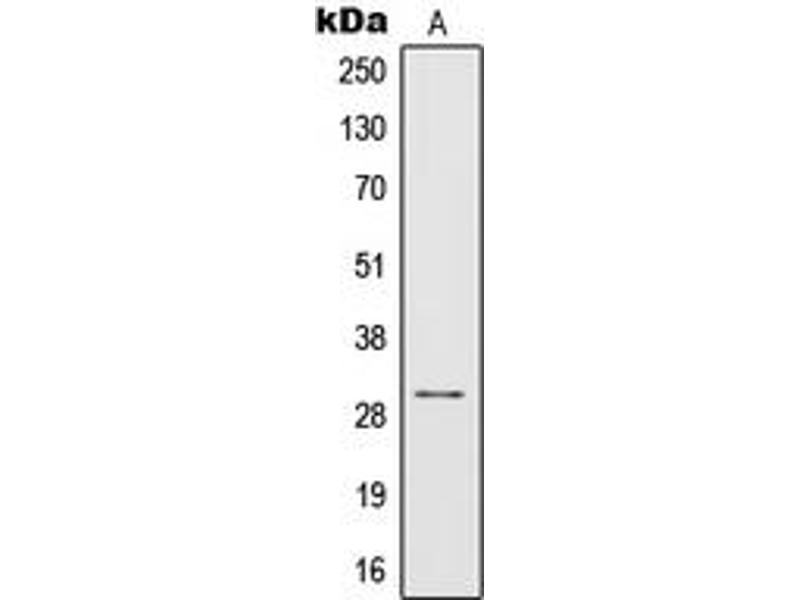 Western Blotting (WB) image for anti-IL1B antibody (Interleukin 1, beta) (Center) (ABIN2706371)