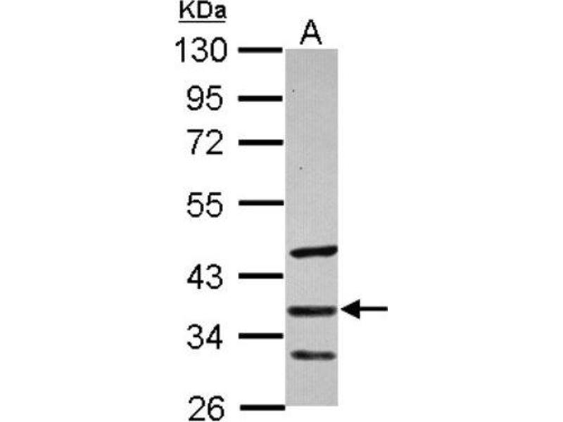 Western Blotting (WB) image for anti-SFRP5 antibody (Secreted Frizzled-Related Protein 5) (ABIN4353142)