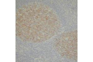 Immunohistochemistry (Formalin-fixed Paraffin-embedded Sections) (IHC (fp)) image for anti-MME antibody (Membrane Metallo-Endopeptidase) (ABIN2445879)
