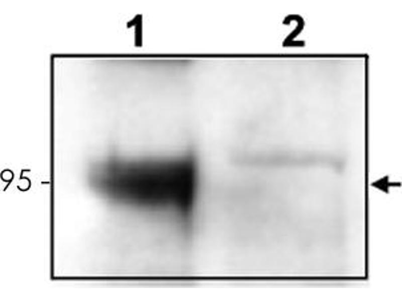 Image no. 3 for anti-Neurotrophic tyrosine Kinase, Receptor, Type 3 (NTRK3) antibody (ABIN539562)
