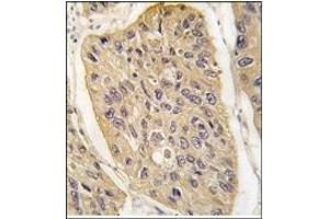 image for anti-WIF1 antibody (WNT Inhibitory Factor 1) (N-Term) (ABIN4620472)