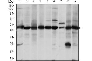 Western Blotting (WB) image for anti-Argininosuccinate Synthase 1 (ASS1) antibody (ABIN1845465)