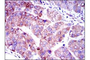 Image no. 4 for anti-SMAD, Mothers Against DPP Homolog 2 (SMAD2) antibody (ABIN1845454)