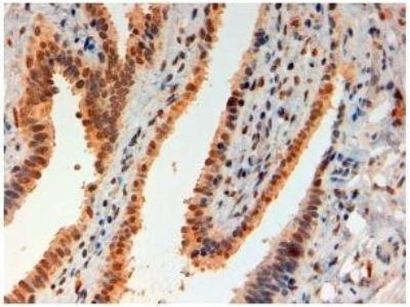 Immunohistochemistry (Paraffin-embedded Sections) (IHC (p)) image for anti-Forkhead Box L2 (FOXL2) (C-Term) antibody (ABIN249959)