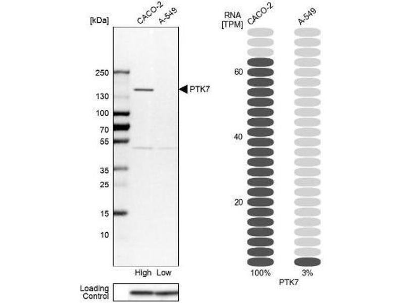 Western Blotting (WB) image for anti-PTK7 Protein tyrosine Kinase 7 (PTK7) antibody (ABIN4348548)