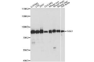 Image no. 1 for anti-G2/M-Phase Specific E3 Ubiquitin Protein Ligase (G2E3) antibody (ABIN6568351)