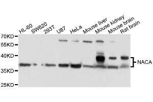 Image no. 1 for anti-Nascent Polypeptide Associated Complex alpha 1 (NACa1) antibody (ABIN6144334)