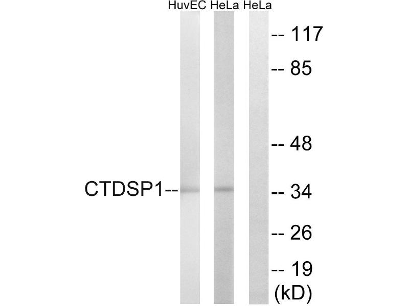 Image no. 2 for anti-CTD (Carboxy-terminal Domain, RNA Polymerase II, Polypeptide A) Small Phosphatase 1 (CTDSP1) antibody (ABIN1575900)