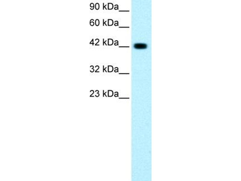 Western Blotting (WB) image for anti-GATA3 antibody (GATA Binding Protein 3) (C-Term) (ABIN2779713)