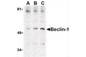 Image no. 5 for anti-Beclin 1, Autophagy Related (BECN1) (C-Term) antibody (ABIN615249)