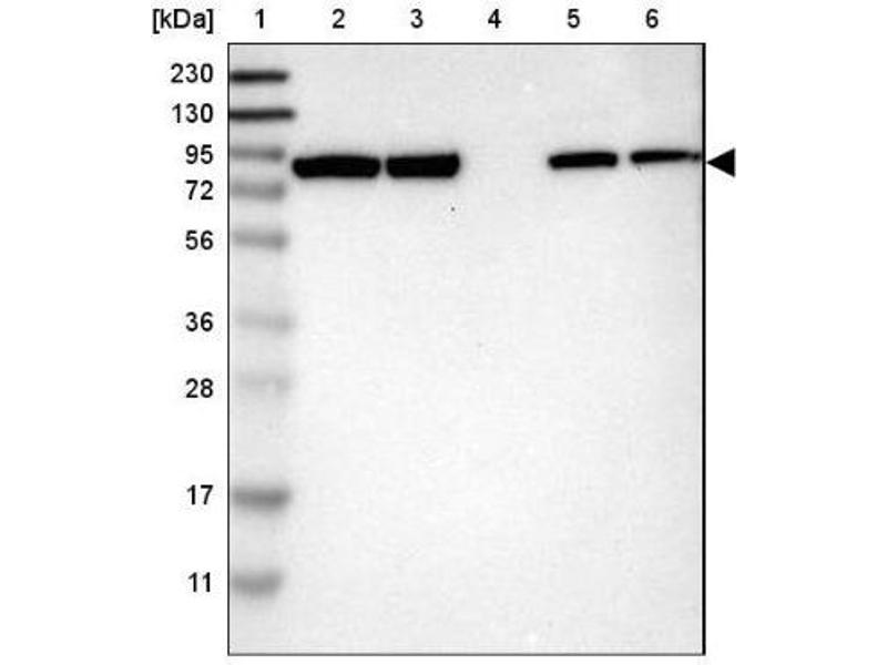 Western Blotting (WB) image for anti-Adenosine Deaminase, RNA-Specific, B1 (ADARB1) antibody (ABIN4349794)