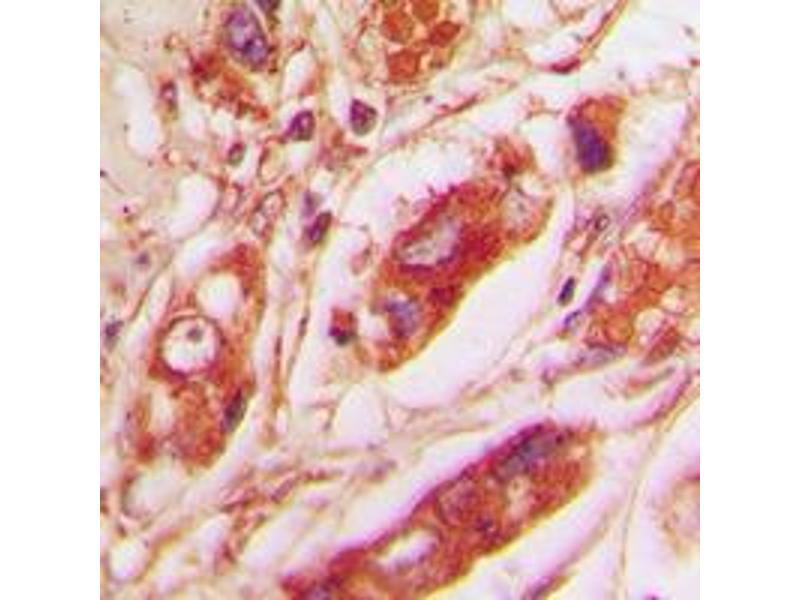 Immunohistochemistry (IHC) image for anti-Vimentin antibody (VIM) (C-Term) (ABIN2705329)