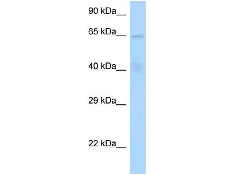 Western Blotting (WB) image for anti-Signal Transducing Adaptor Molecule (SH3 Domain and ITAM Motif) 1 (STAM) (N-Term) antibody (ABIN2789368)