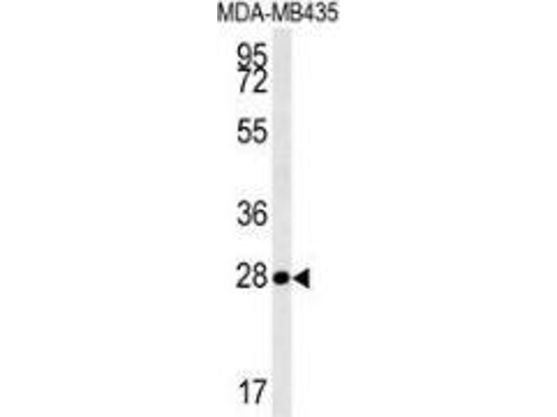 Western Blotting (WB) image for anti-Mitochondrial RRNA Methyltransferase 1 Homolog (S. Cerevisiae) (MRM1) (AA 87-117), (N-Term) antibody (ABIN953500)