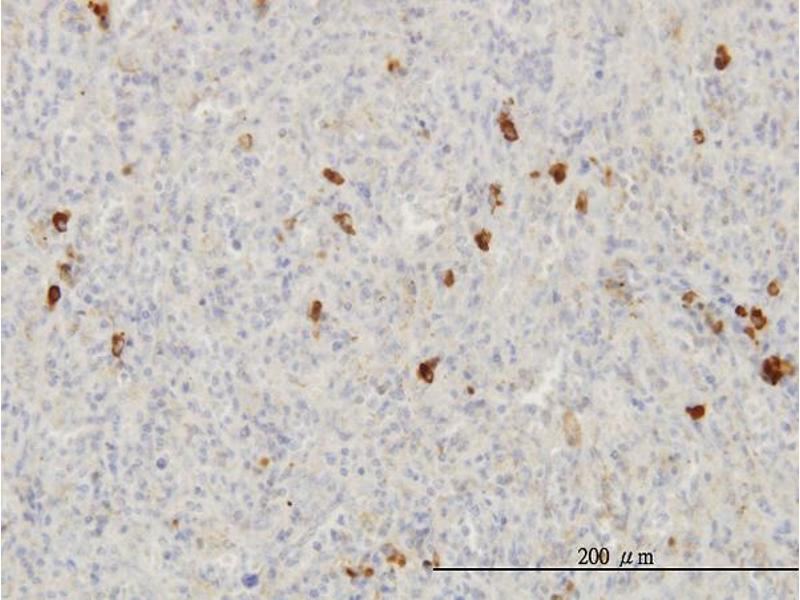 Immunostaining (ISt) image for anti-FGF1 antibody (Fibroblast Growth Factor 1 (Acidic)) (AA 46-155) (ABIN515609)