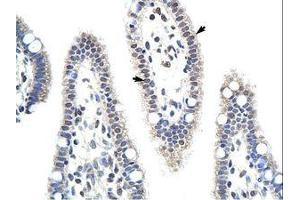 Image no. 1 for anti-Unconventional SNARE in The ER 1 Homolog (S. Cerevisiae) (Use1) (N-Term) antibody (ABIN6736183)
