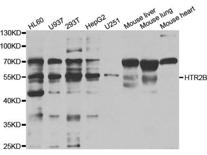 Western Blotting (WB) image for anti-Serotonin Receptor 2B (HTR2B) antibody (ABIN5962832)