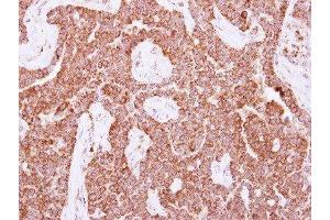 Immunohistochemistry (Paraffin-embedded Sections) (IHC (p)) image for anti-Nudix (Nucleoside Diphosphate Linked Moiety X)-Type Motif 3 (NUDT3) (Center) antibody (ABIN4341122)