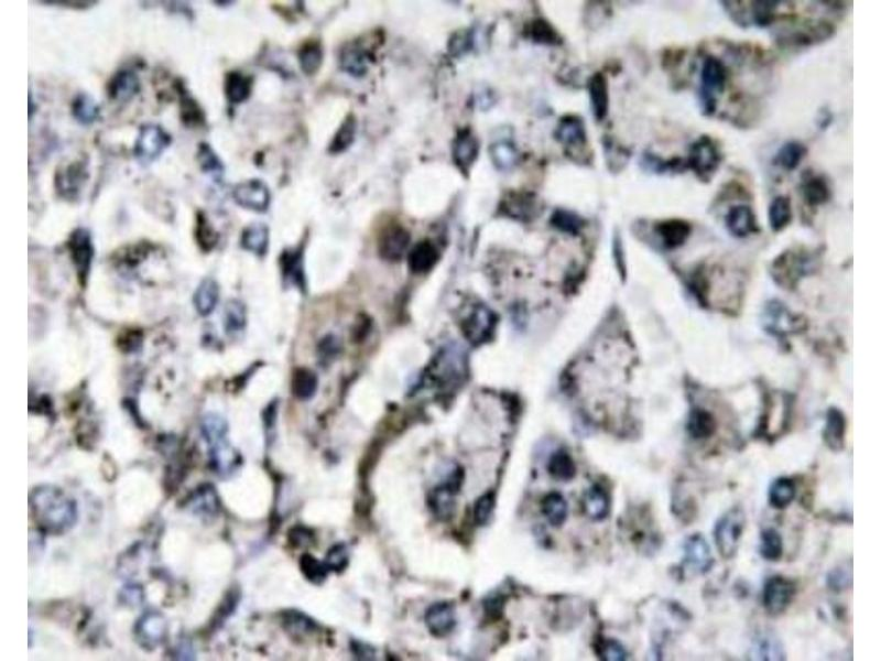 Immunohistochemistry (Paraffin-embedded Sections) (IHC (p)) image for anti-Interleukin 11 (IL11) (N-Term) antibody (ABIN446997)