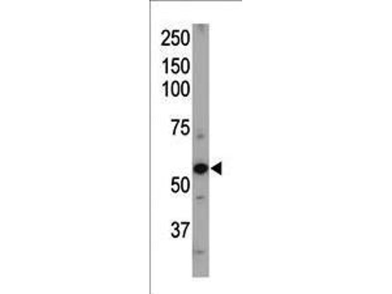 Western Blotting (WB) image for anti-ACVRL1 antibody (Activin A Receptor Type II-Like 1) (AA 38-68) (ABIN392241)