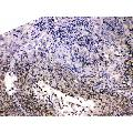 anti-HDGF antibody (Hepatoma-Derived Growth Factor) (AA 61-97)