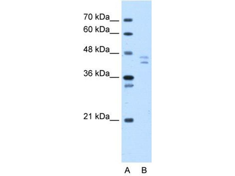 Western Blotting (WB) image for anti-Proteasome (Prosome, Macropain) 26S Subunit, Non-ATPase, 11 (PSMD11) (N-Term) antibody (ABIN309652)