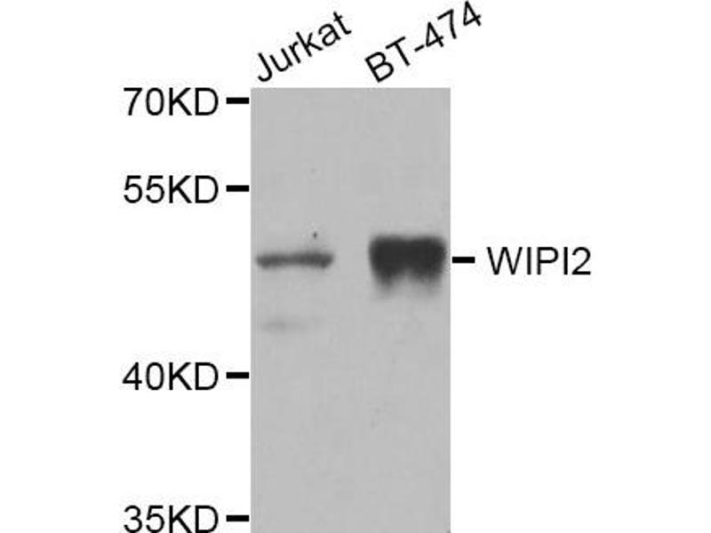 Image no. 3 for anti-WD Repeat Domain, Phosphoinositide Interacting 2 (WIPI2) antibody (ABIN2560778)