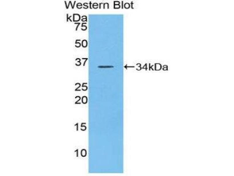 Western Blotting (WB) image for anti-Protein tyrosine Phosphatase, Receptor Type, J (PTPRJ) (AA 567-842) antibody (ABIN1860368)
