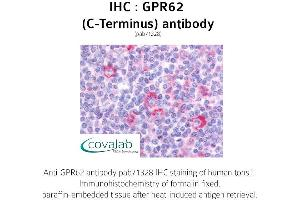 Image no. 1 for anti-G Protein-Coupled Receptor 62 (GPR62) (C-Term) antibody (ABIN1735137)