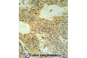 Immunohistochemistry (Paraffin-embedded Sections) (IHC (p)) image for anti-Claudin 23 (CLDN23) (AA 235-265), (C-Term) antibody (ABIN951549)