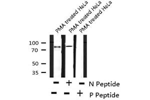 Western Blotting (WB) image for anti-TANK-Binding Kinase 1 (TBK1) (pSer172) antibody (ABIN6271546)