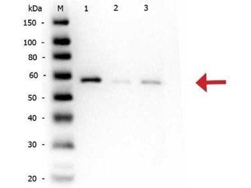 Western Blotting (WB) image for anti-AKT antibody (V-Akt Murine Thymoma Viral Oncogene Homolog 1) (pSer473) (ABIN153477)